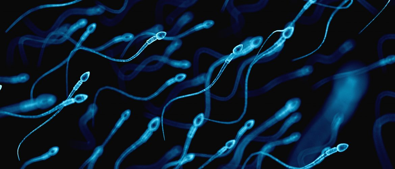 Transtornos Esperma